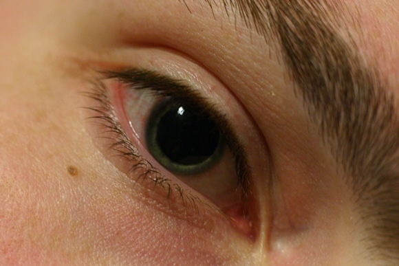Признаком какой болезни являются расширенные зрачки