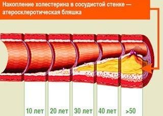 Как избавится от избытка холестерина