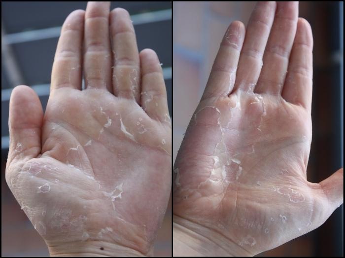 наименование пальцы на руках шершавые Зарегистрирована организационно