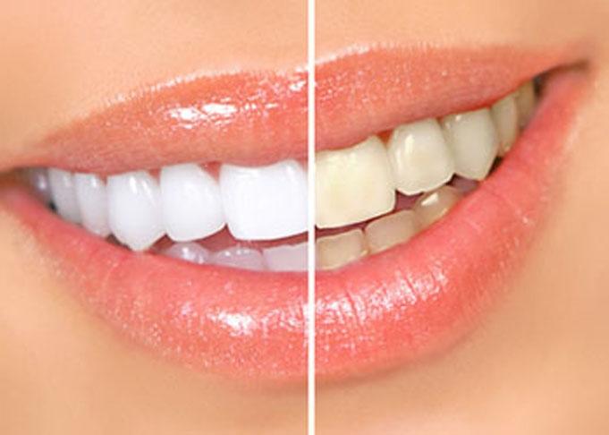 Отзывы система для отбеливания зубов white light отзывы фото