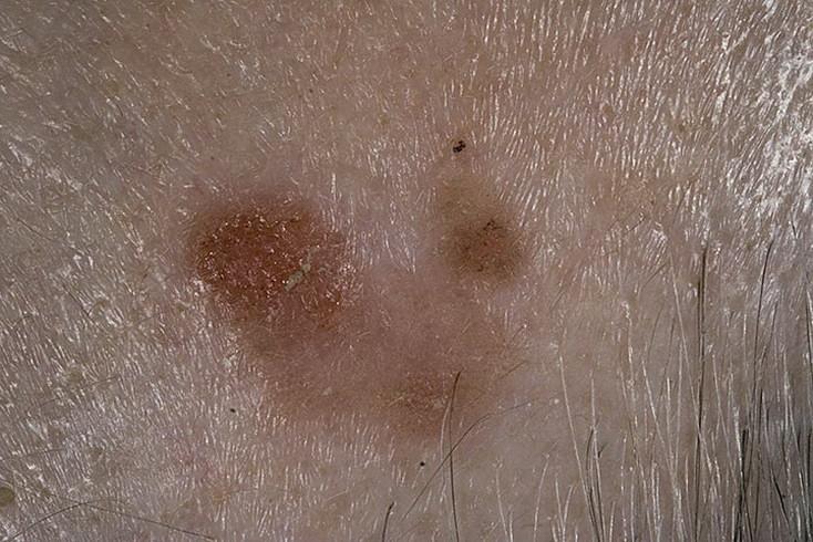 Как вылечить рожистое воспаление руки