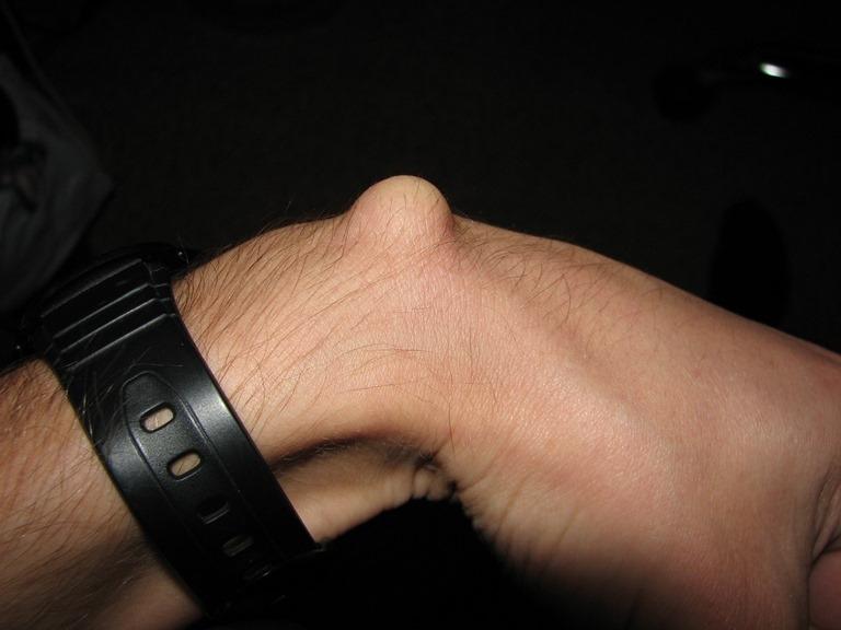Шишка на запястье руки фото
