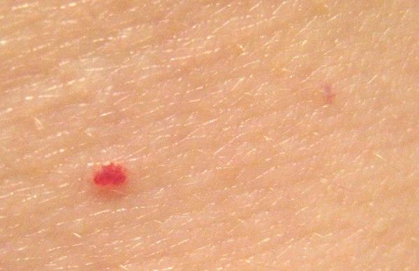 От чего появляются красные точки на теле? - OMaske ru