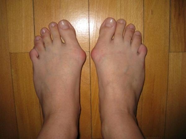 Болят косточки на ногах при ходьбе