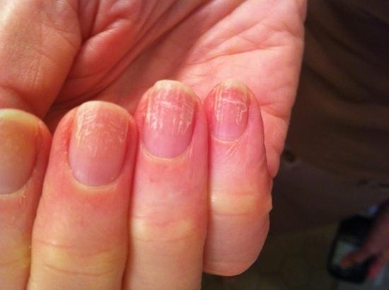 Простой способ вылечить ногти