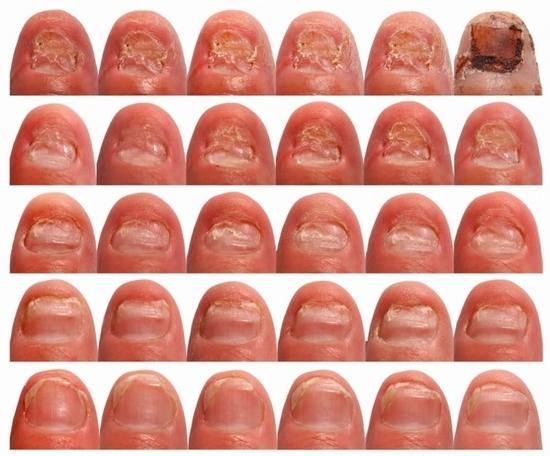 Грибок на ногтях надежное средство