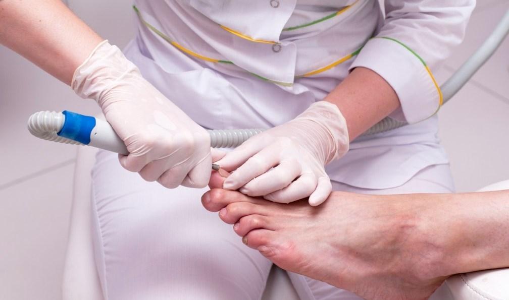 Лечение вросшего ногтя в новосибирске