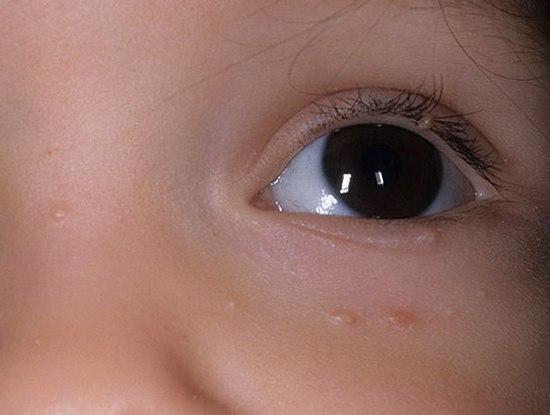 Моллюск контагиозный у детей: симптомы и методы лечения, LS