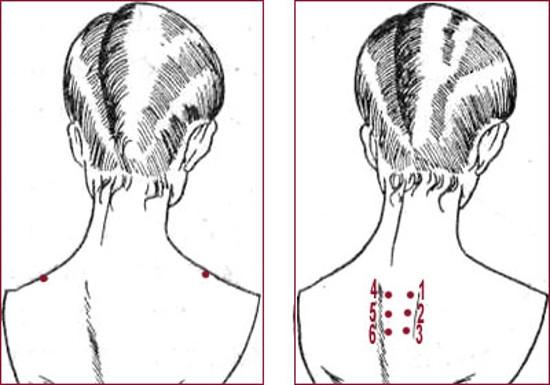 растяжки после увеличения грудины за 3 дня