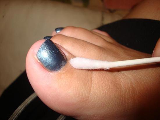 Грибок на пальцах ног лечение перекисью водорода