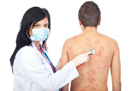 острая форма аллергии
