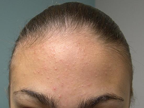 прыщи на голове волосы выпадают