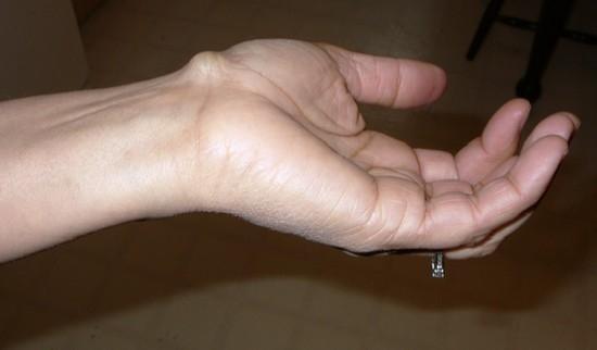 фото свищей на деснах у детей