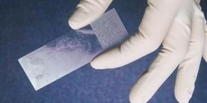 Ключевые клетки в мазке – что это?