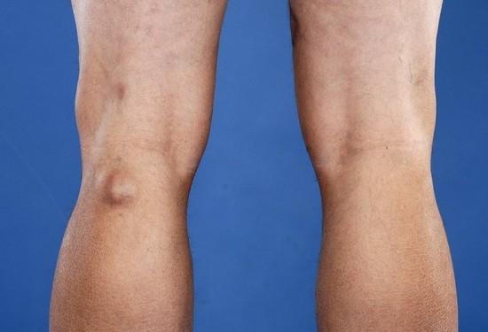 Киста бейкера народными средствами коленного сустава в суставах не хватает смазки