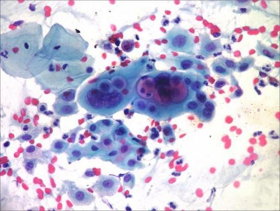 videleniya-iz-vlagalisha-pod-mikroskopom