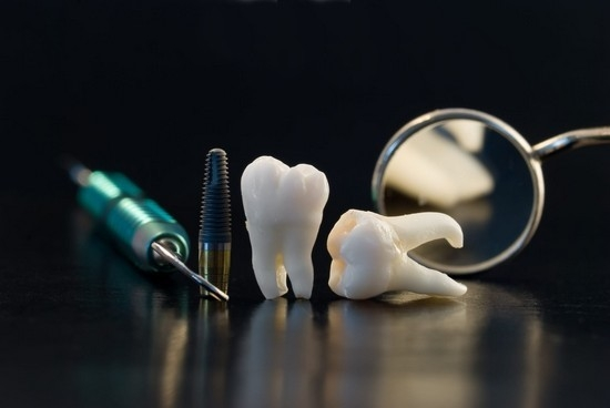удаление зуба мудрости на нижней челюсти