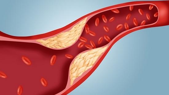 Как понизить холестерин в крови?