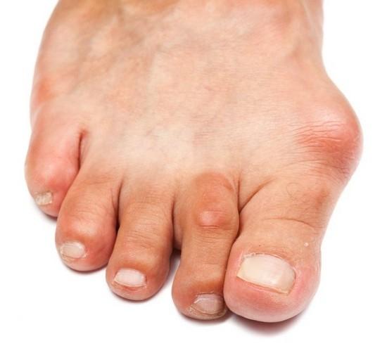 Артрит стопы ноги сустава суставной остеосклероз кистей рук
