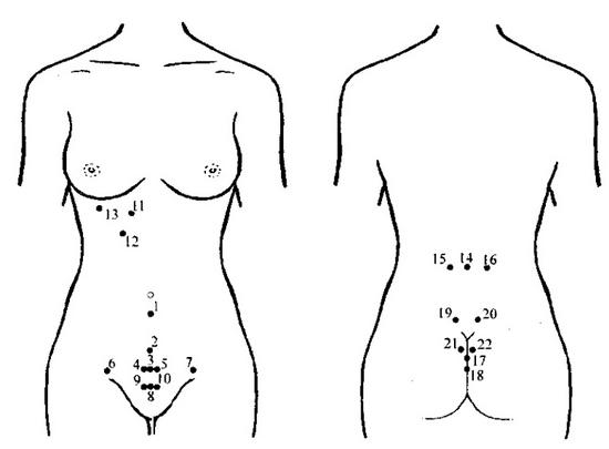 Гирудотерапия: точки присасывания пиявок при проблемах мочеполовых систем