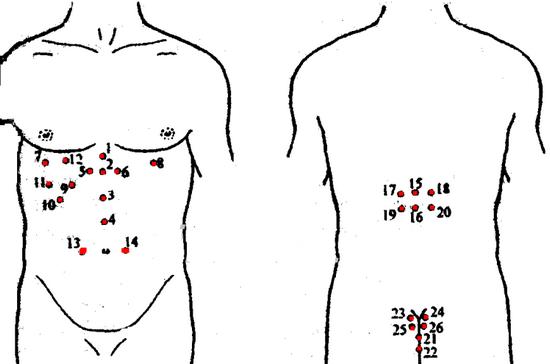 Гирудотерапия: точки присасывания пиявок, схемы постановки
