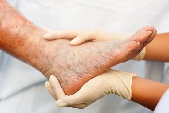 Опухла нога в районе стопы что делать какое лечение будет эффективным