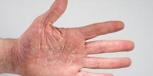 Проверенные народные средства при лечении нейродермита