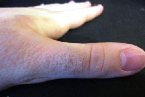 кожная аллергия на руках лечение