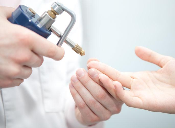 Бородавка на пальце: лечение